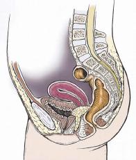 Cáncer de cérvix o cuello uterino